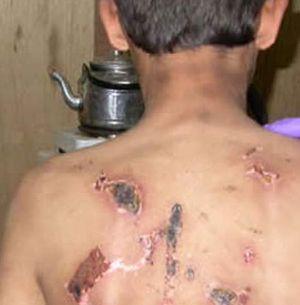 Tunisie-torture